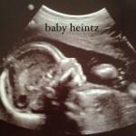 baby heintz